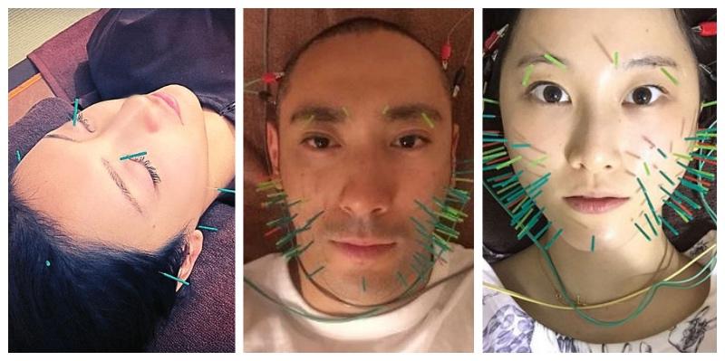 美容鍼の施術を受ける芸能人