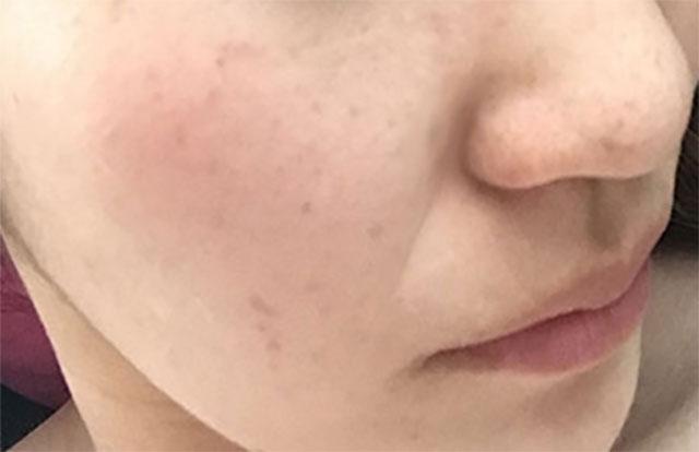 ほうれい線が目立つ頬