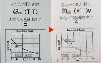 肌年齢の変化